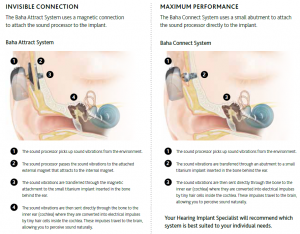 Hearing Aid Equipment Archives Better Hearing Jax